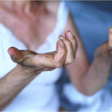 Debolezza muscolare e mialgia nella DM2